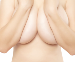Renaissance Cosmetic Surgery | Natural Breast Augmentation